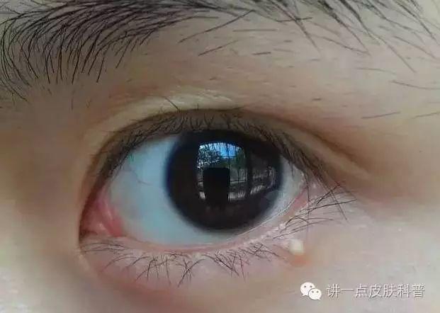 眼球上长了个白色疙瘩_记住了吗?长在眼睛周围的这种白色疙瘩叫粟丘疹,不叫脂肪粒哇