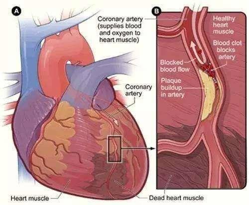 常见嗜好诱发心梗!两名急性心梗患者九小时被救回