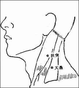 腕骨结构示意图