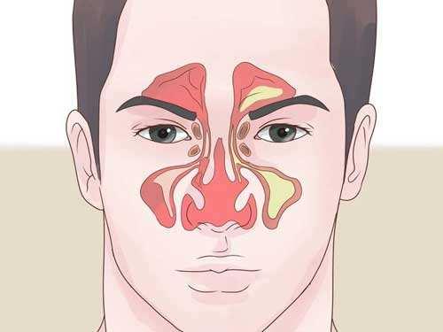隆鼻没拆线碰了鼻塞眼睛肿