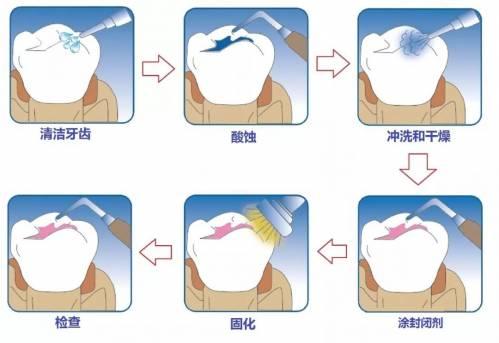 做窝沟封闭的最佳时期是宝宝的牙齿完全萌出,还没有生成蛀牙的时候.