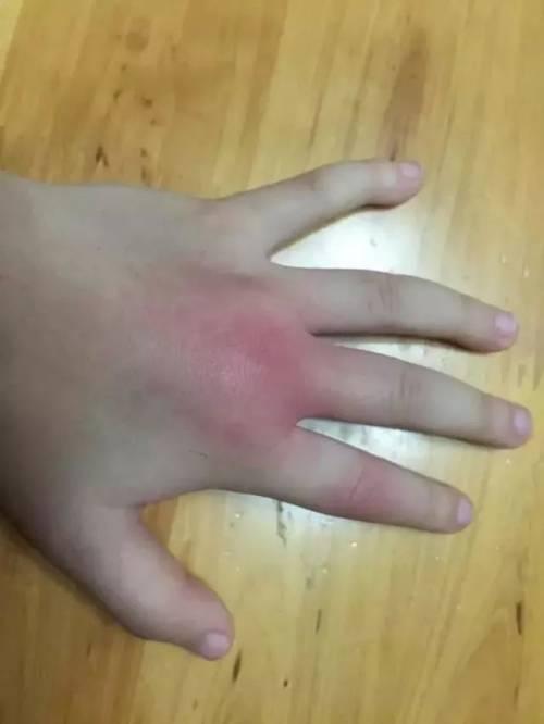 大多数患者被蜈蚣咬伤后表现为局部肿胀,剧痛和刺痒感,重症患者除了