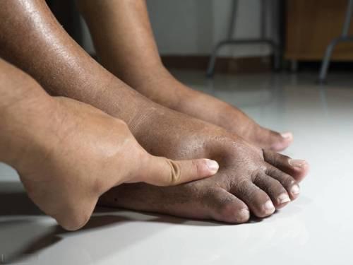 多年腰痛伴小腿水肿久治不愈,问题到底出在哪里?巧用真武汤治疗
