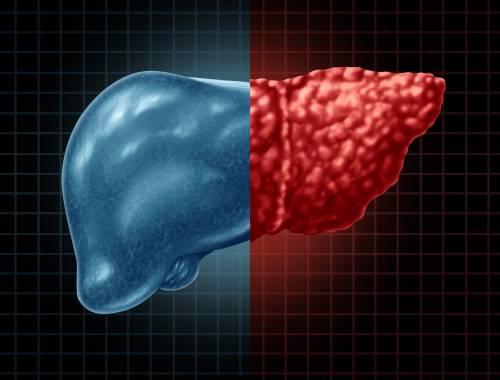 脂肪肝患者生活中需要注意什