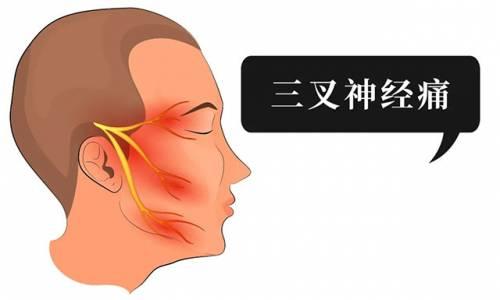 """男子额头的疼痛突然突然停止,他其实是患上了""""天下第一痛""""——三叉神经痛"""