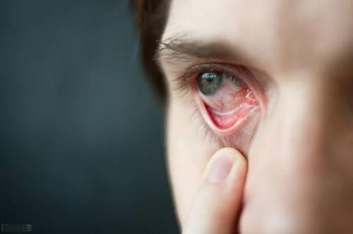 冬季眼红红?当心是过敏性结膜炎作祟!专家教你三招巧预防