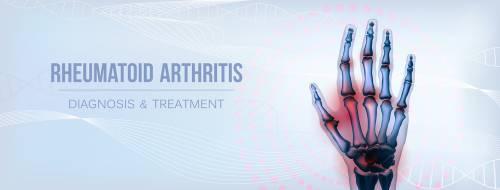什么是类风湿性关节炎?类风湿性关节炎和类风湿性关节