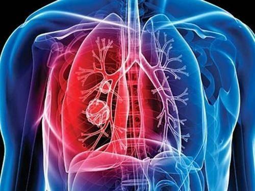 和新冠肺炎一样需要重视的传染病,许多人以为被消灭了,不可大意
