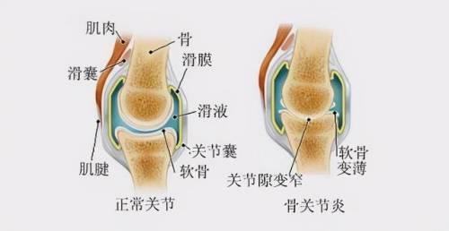 关节疼痛,不但影响生活,还会增加骨折和患痴呆症的风险