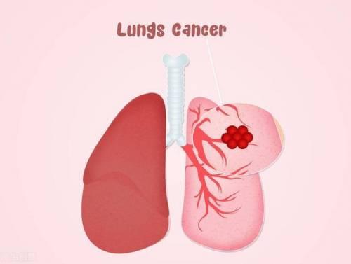 肺结节术后注意事项,术后长期咳嗽、咳痰可能与术后不注意有关
