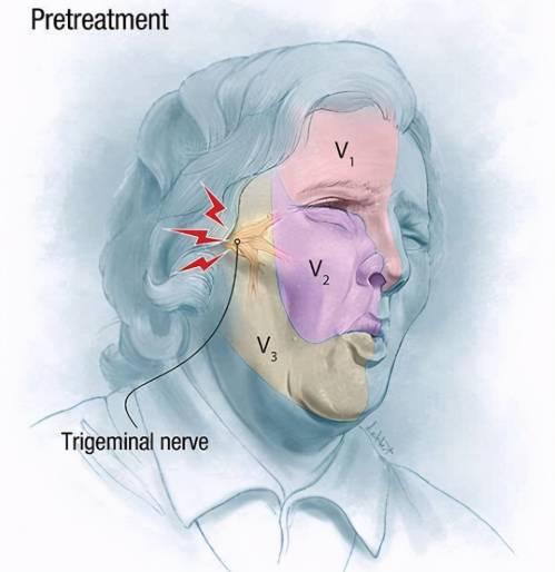 警惕!你以为是牙痛实际是三叉神经痛