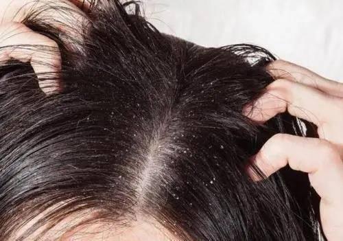 脂溢性皮炎的症状有哪些?3种缓解方式要上心,有助于好转