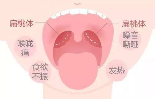 腺 急性 炎 扁桃