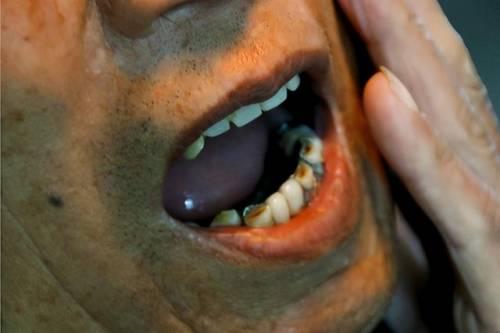 细杆烟对身体伤害比粗杆烟小?吸烟只吸前半截,能降低肺部损伤?